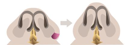 콧볼축소,콧볼성형,코끝성형,복코/유캔비성형외과